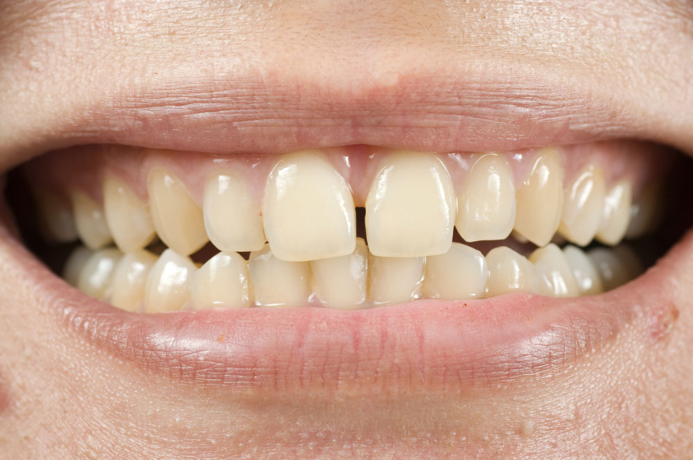 Tooth Discoloration – Yellow Teeth Prevention, Treatment ...