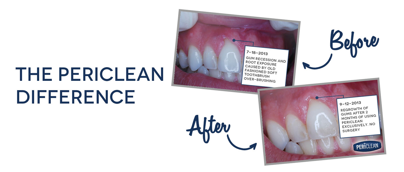 The Periclean Difference, Before: Gum Recession and root exposure caused by old fashioned soft toothbrush over-brushing, After: Regrowth of gums after 2 months of using Periclean exclusively, no surgery